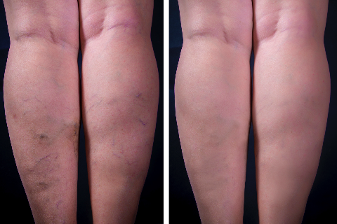 Spider vein removal Berlin