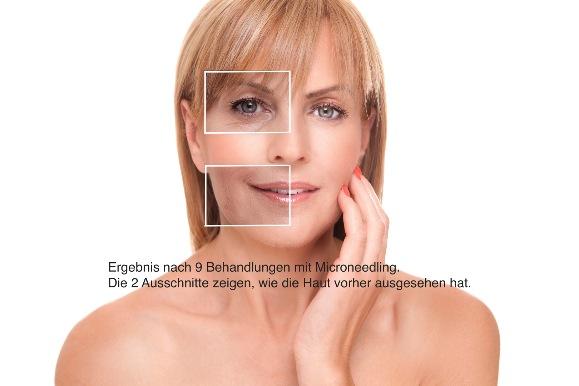 Medizinisches Microneedling Berlin Aknenarben Dehnungststreifen Falten entfernen